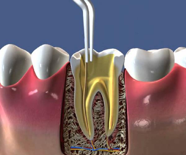 Как называется удаление нерва в зубе